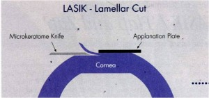 Hinged flap being cut during the LASIK procedure