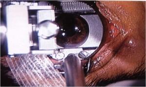 Microkeratome LASIK