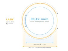 Comparison in incision size between ReLEx smile and LASIK